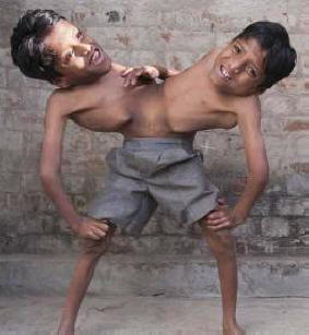 Siamese twins in India have become a new deity